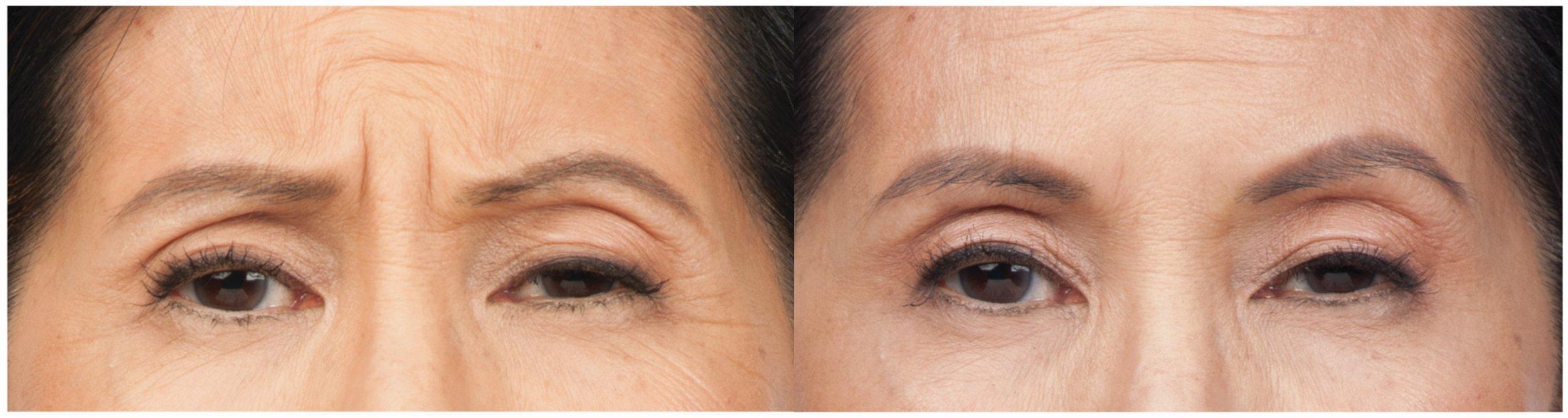 botox-frown-lines-wrinkles-woman.jpg