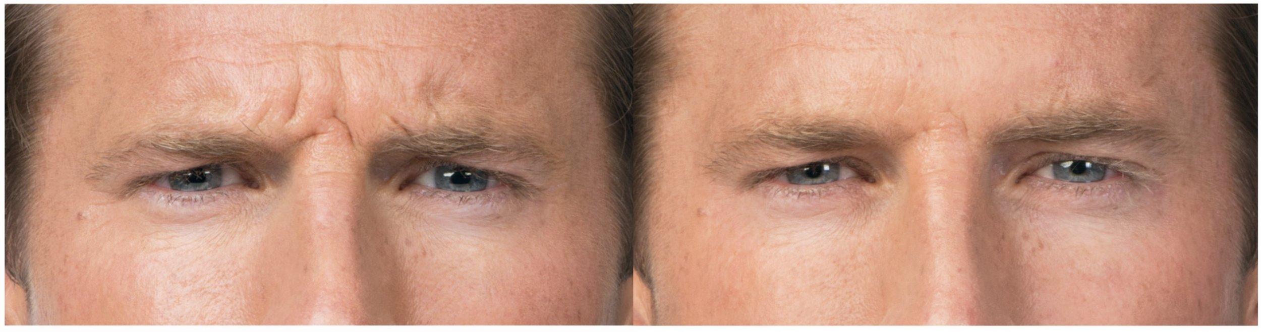 botox-men-frown-forehead-wrinkles.jpg