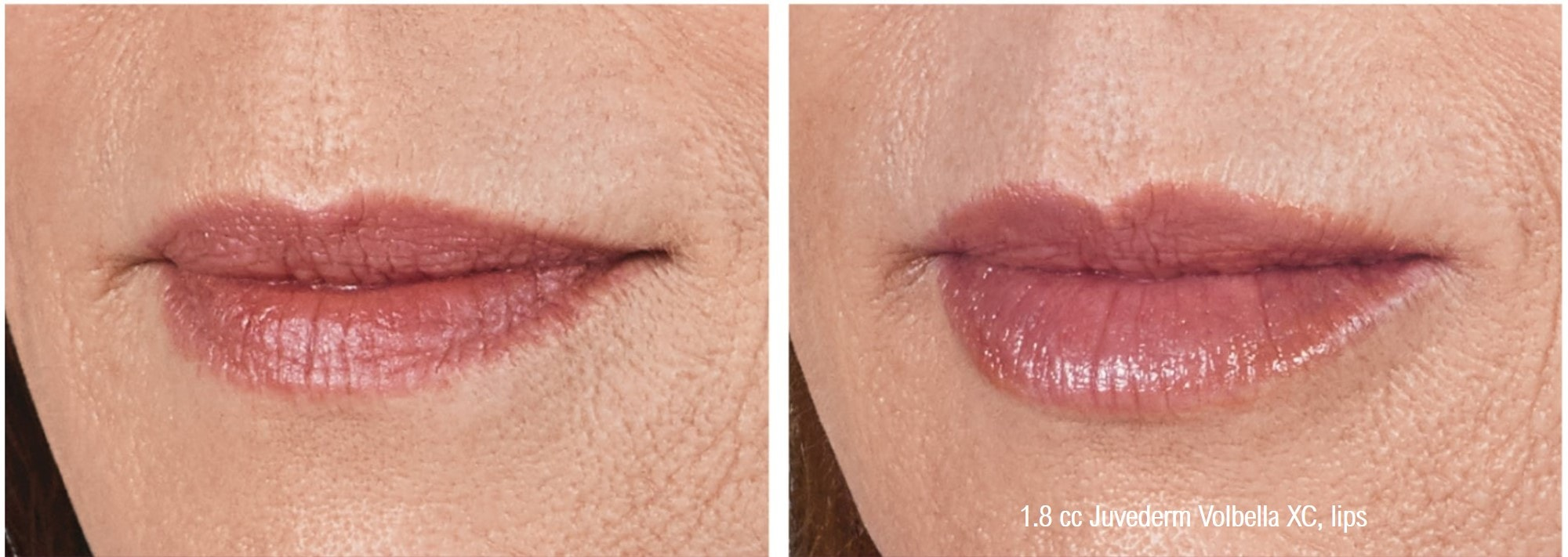 juvederm-volbella-xc-lip-augmentation-closeup-min.jpg