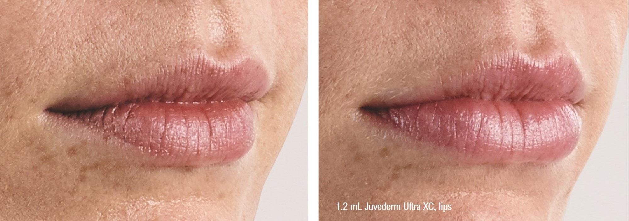 juvederm-ultra-xc-lip-filler-closeup-min.jpg