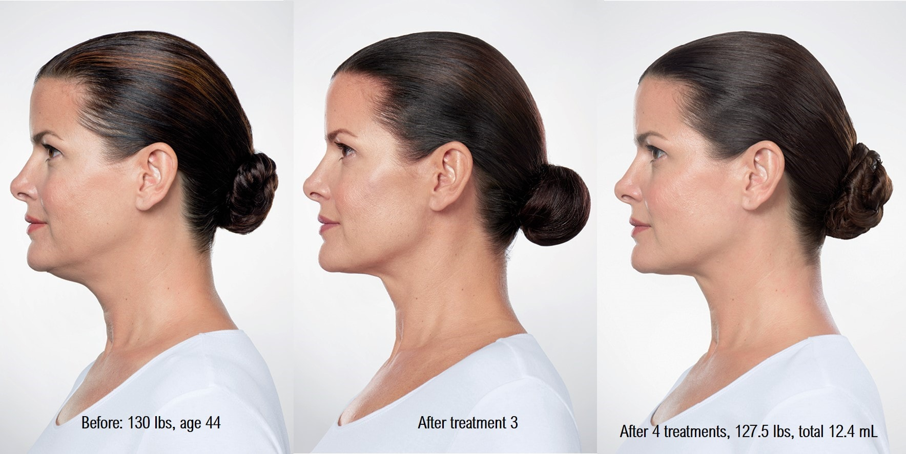kybella-woman-before-after-min.jpg