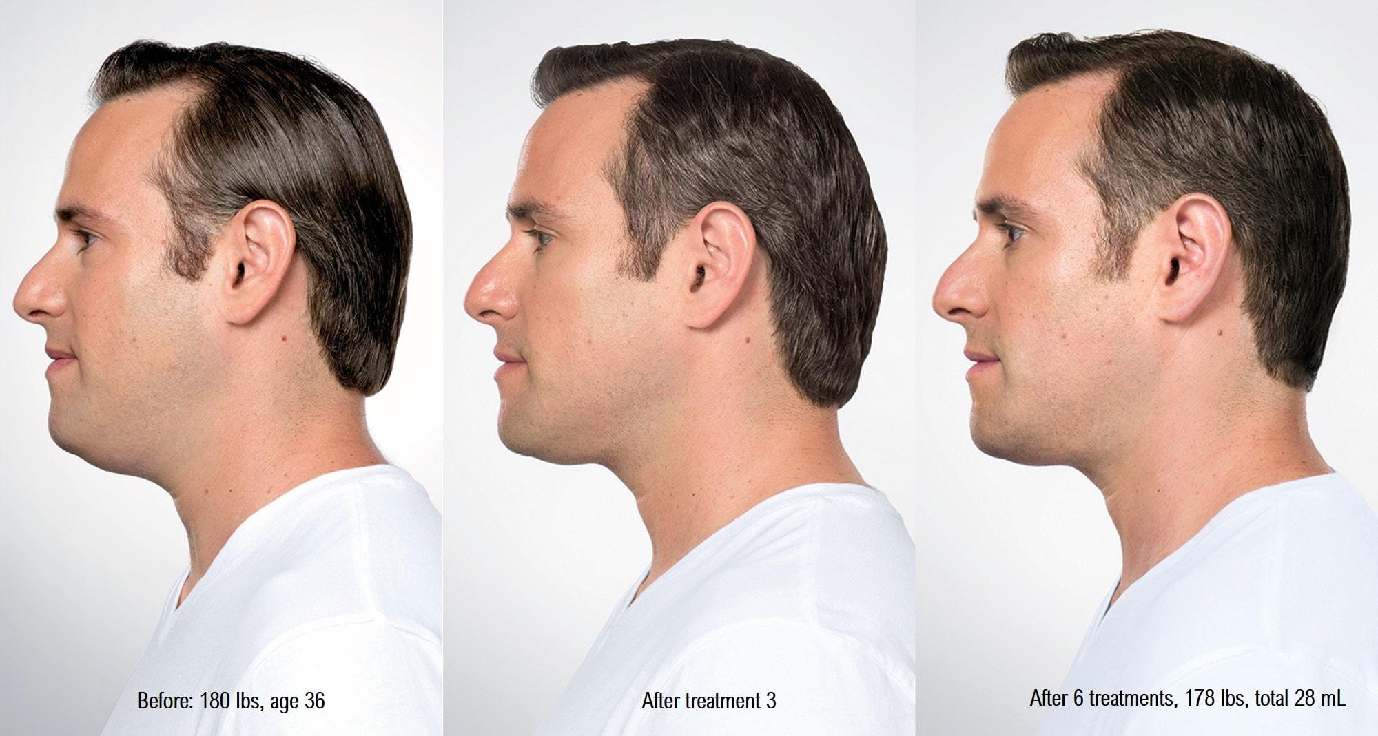 kybella-men-before-after-min.jpg