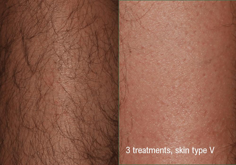 hair-removal-leg-darker-skin-min.png