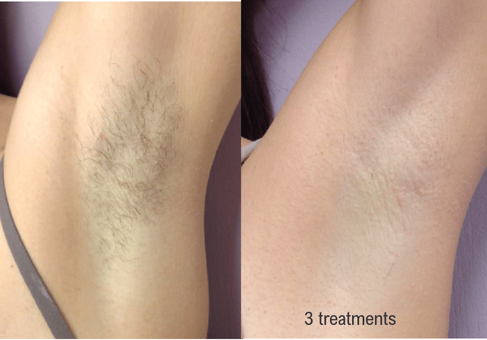 hair-removal-under-arm-min.png