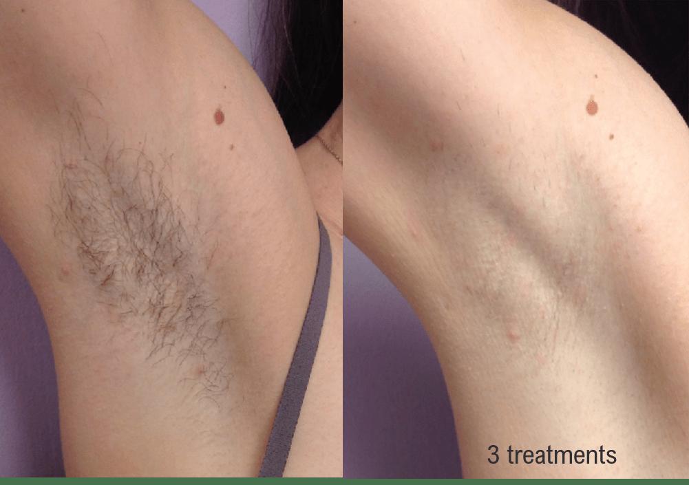 hair-removal-armpit-min.png