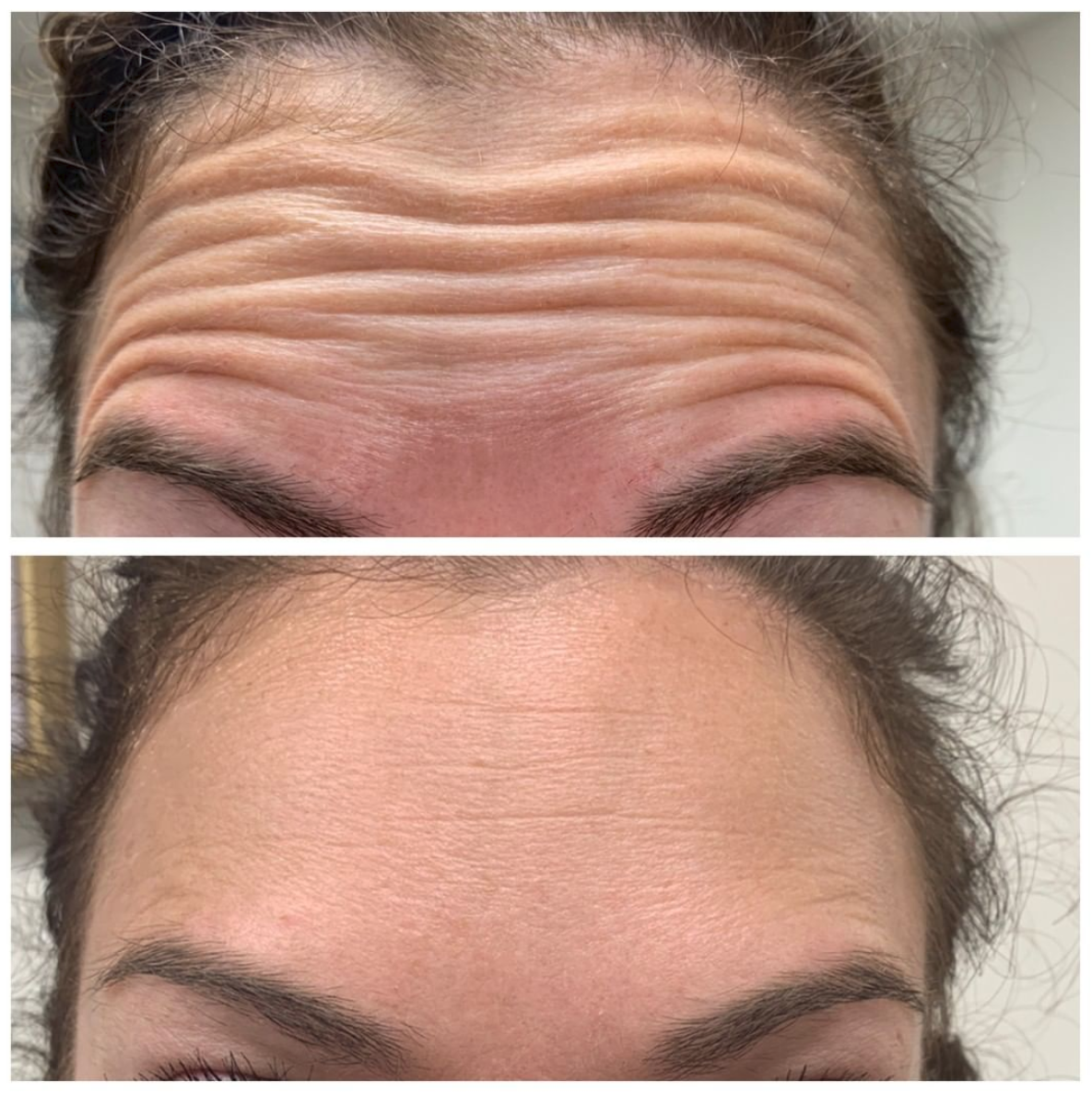 Botox before and after photos, forehead lines, in Lexington, MA