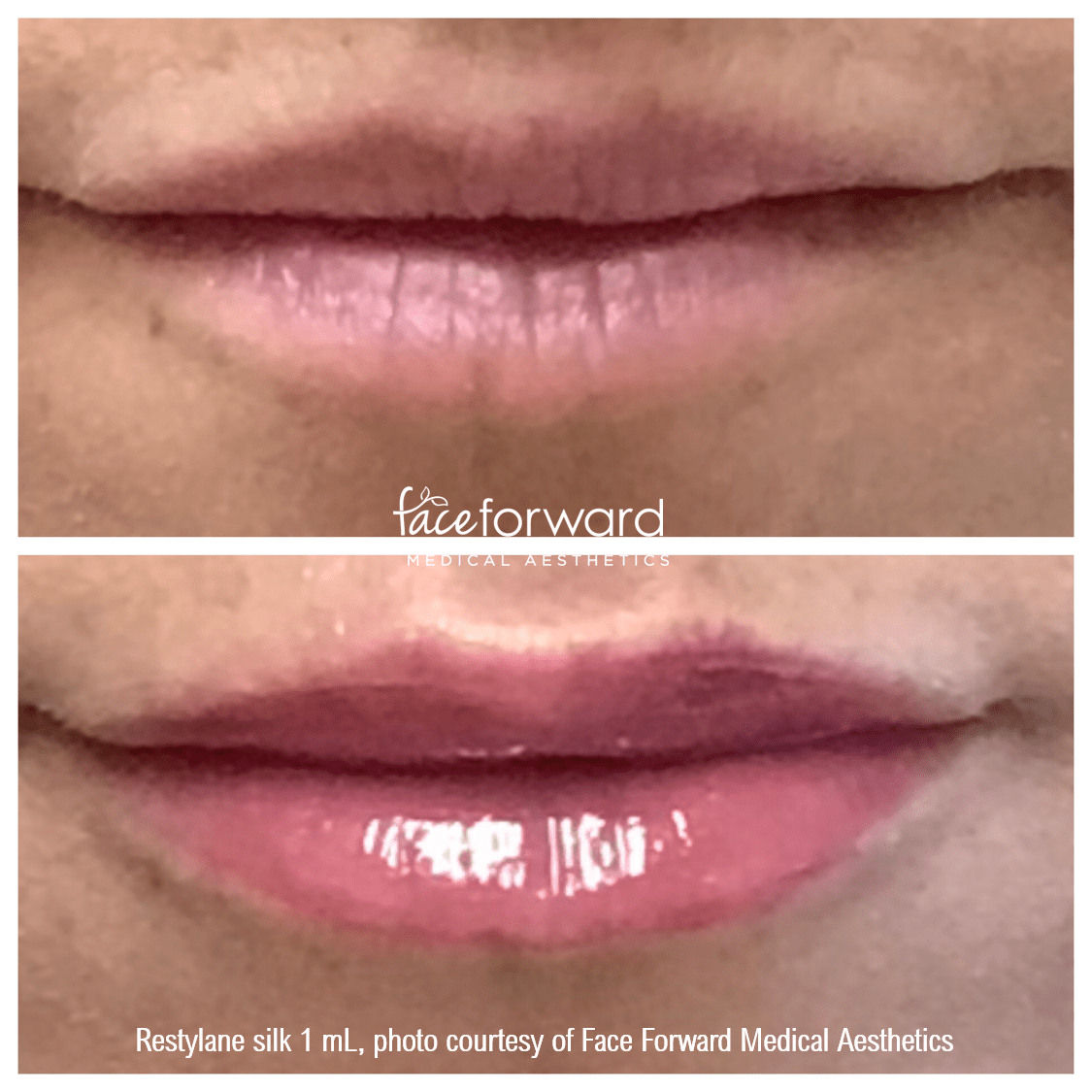lip-filler-restylane-before-after.png