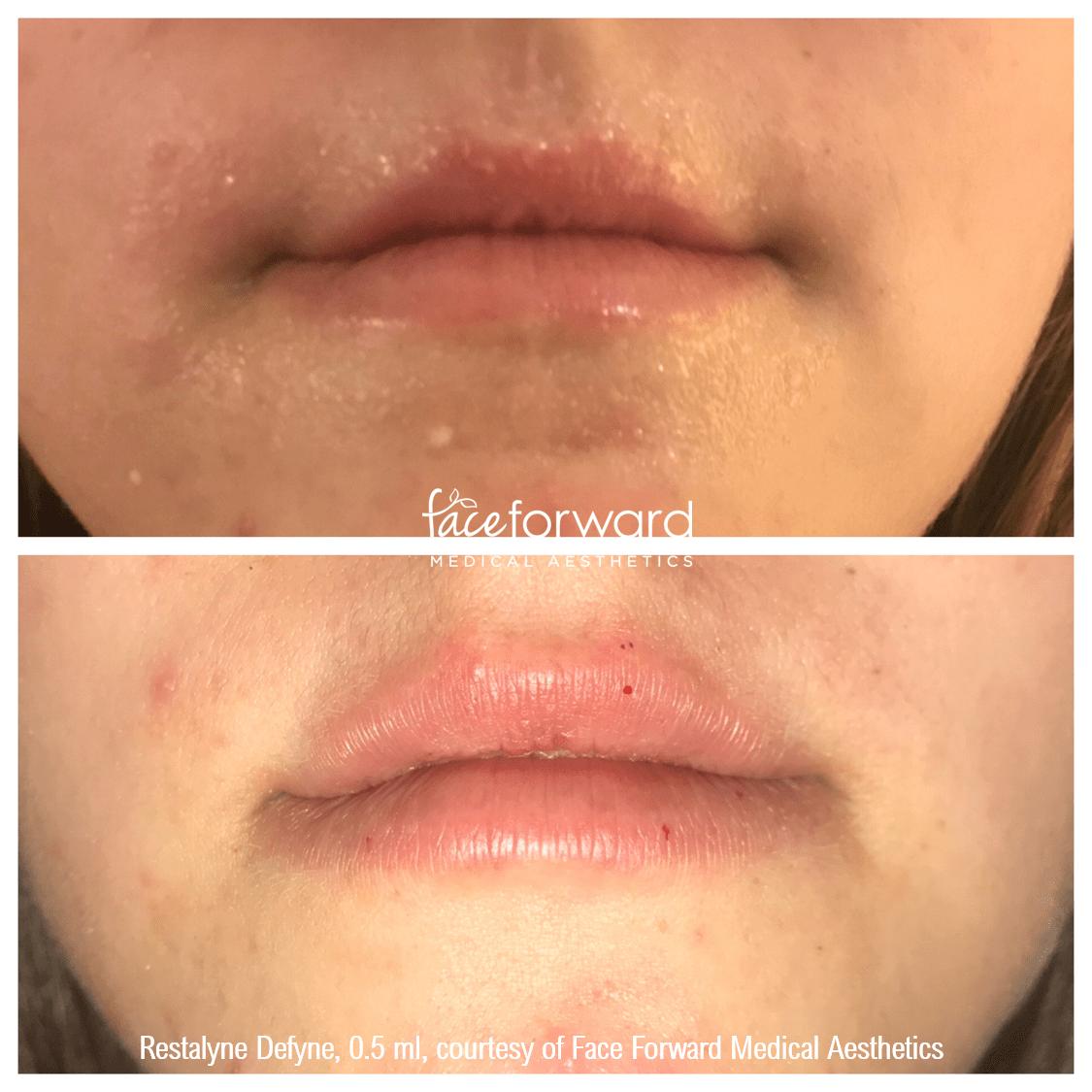 lip-filler-restalyne-defyne-before-after.png
