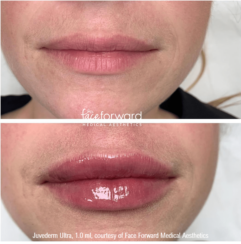 lip-filler-juvederm-ultra-before-after.png