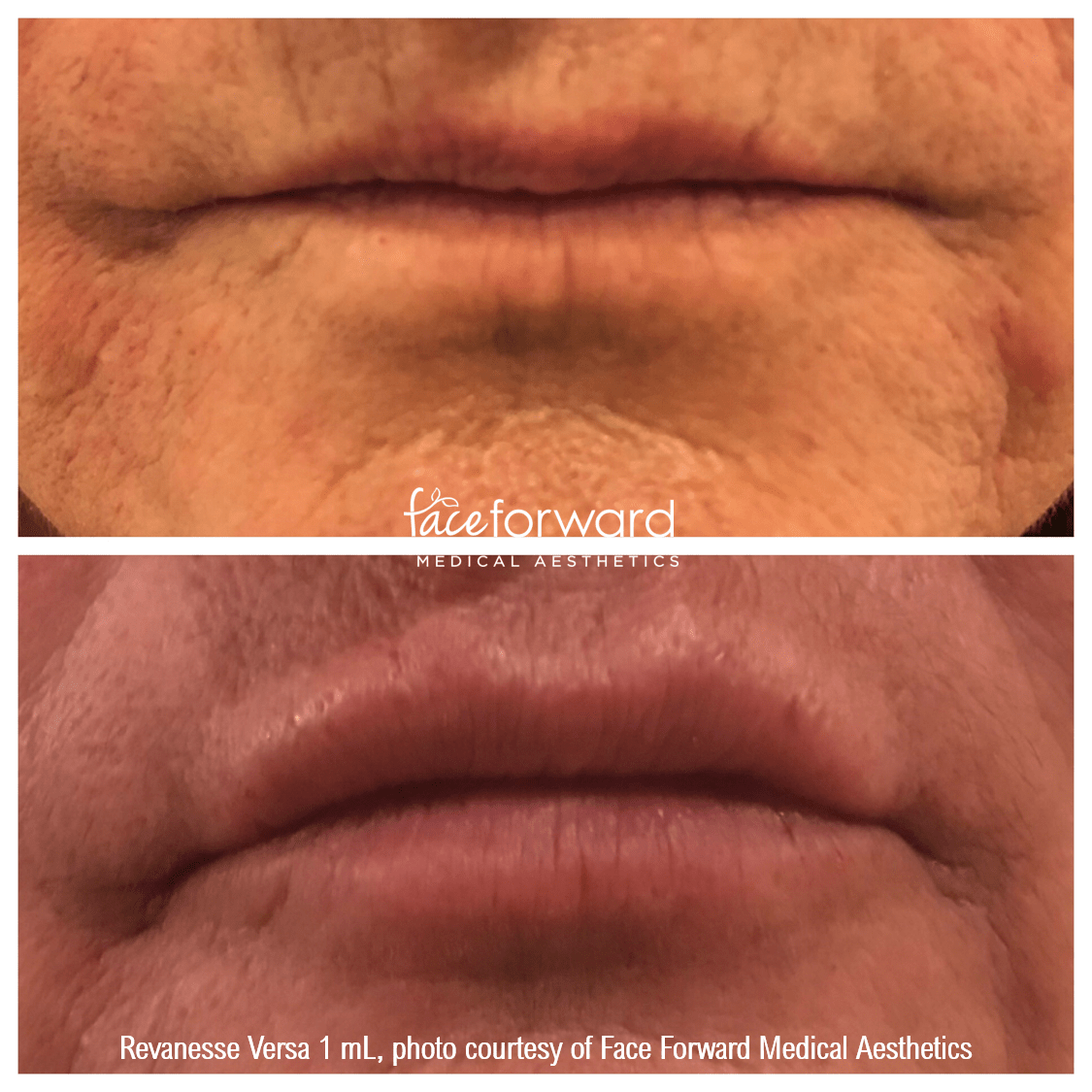 lip-filler-revanesse-versa-before-after.png