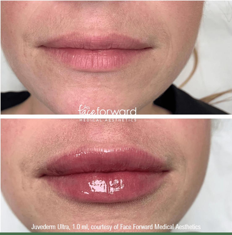 Lip filler using 1.0 mL (one syringe) of Juvederm Ultra. Love those lips!