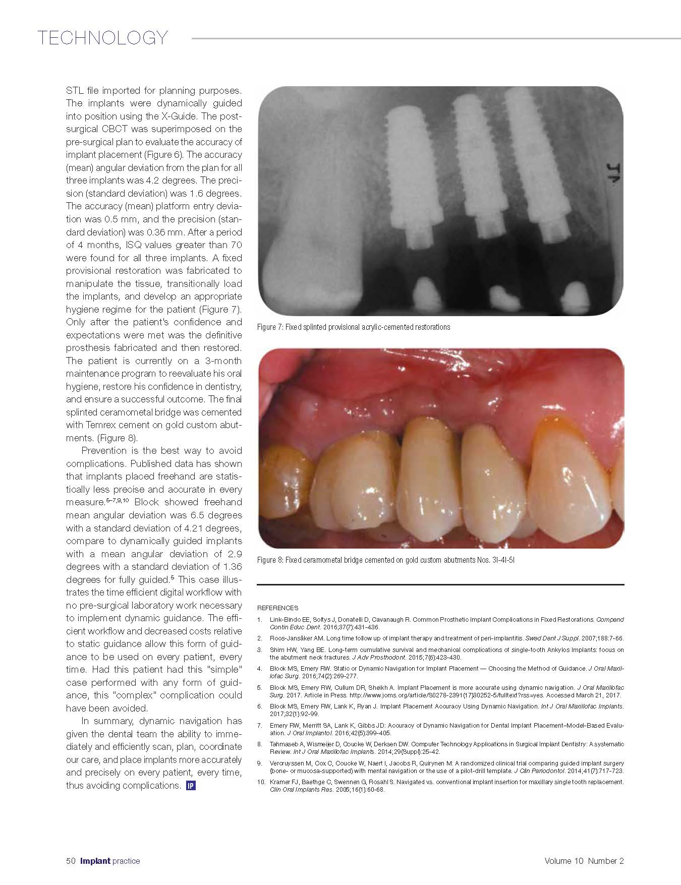 Navigation-To-Prevent-Implant-ComplicationsIPUSQ217_Page_3.jpg