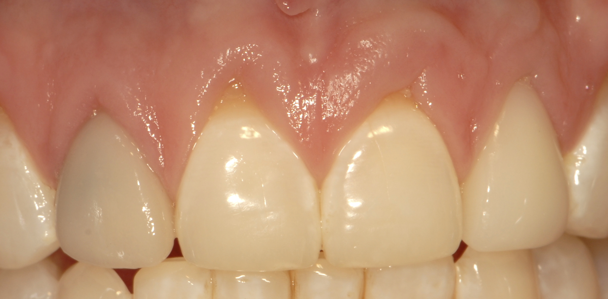 Ill fitting veneers gum issues before