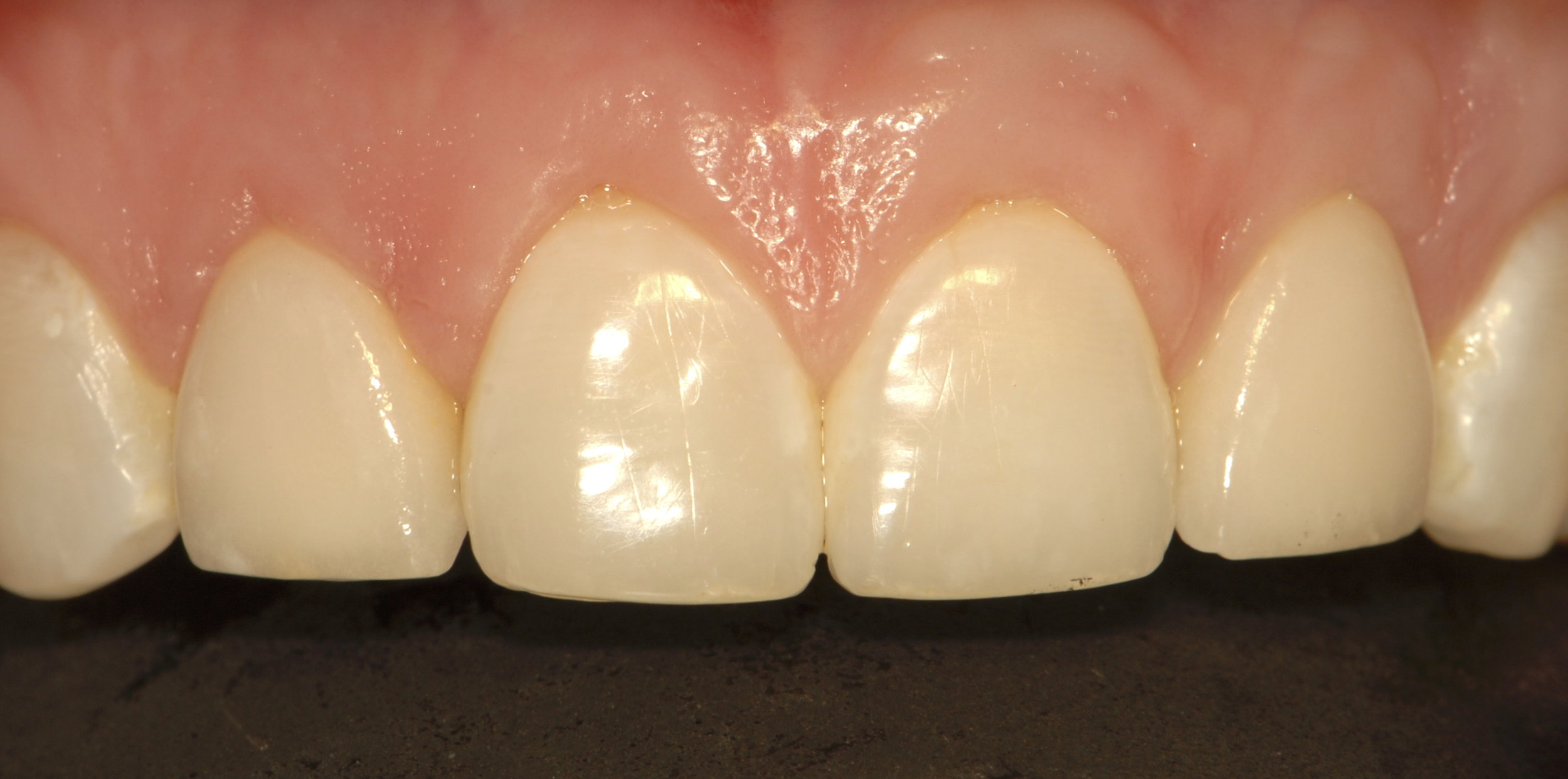 New all ceramic crowns after gum surgery