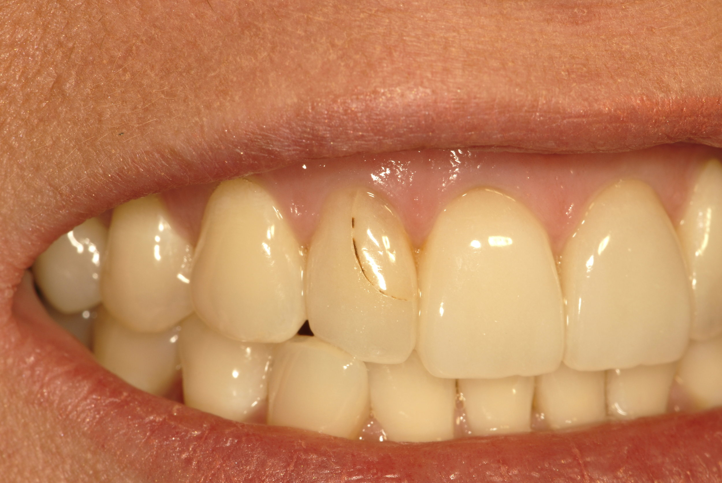 Fractured porcelain veneer before