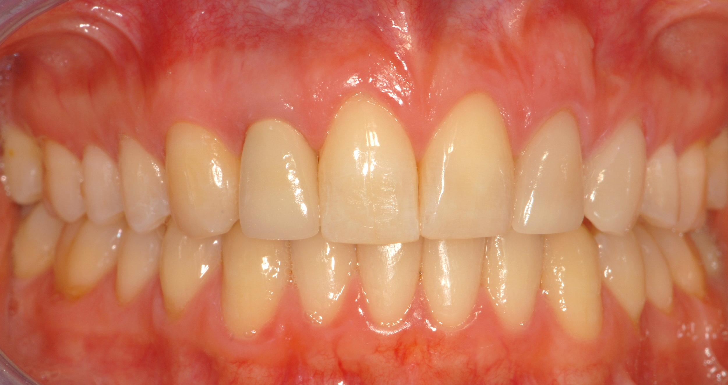 Team dentistry orthodontics, surgery, implants, prosthodontics