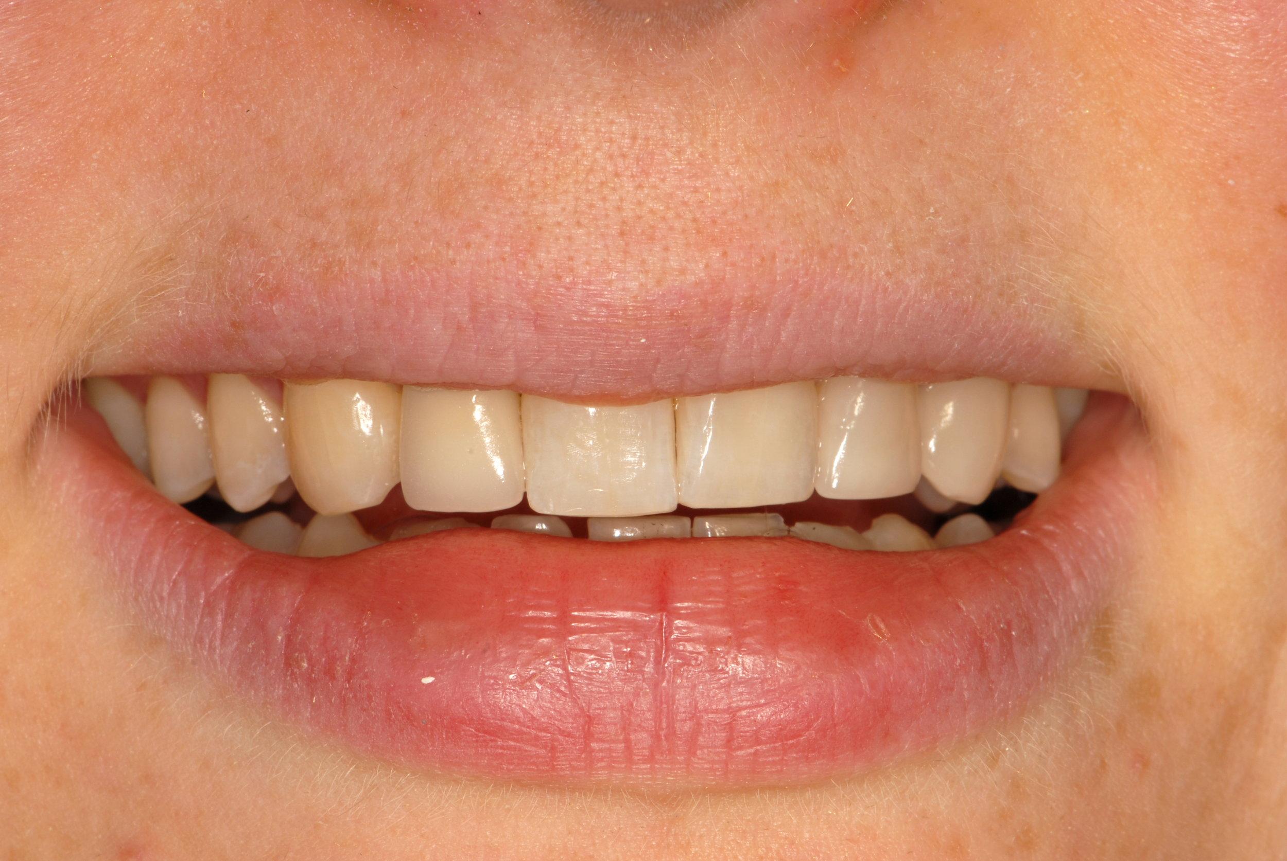 Team dentistry happy smile
