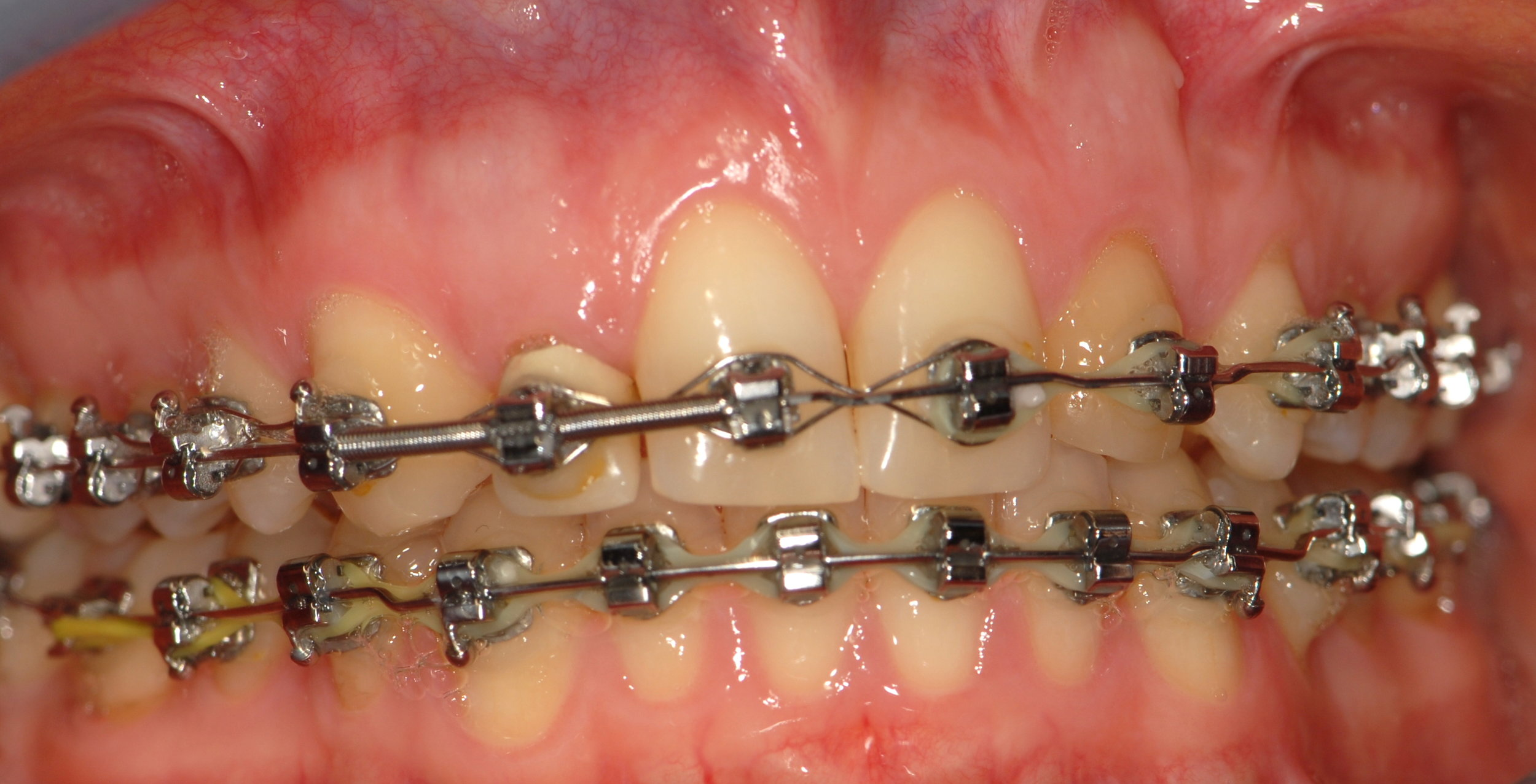 Orthodontics to create space for implant and restorations