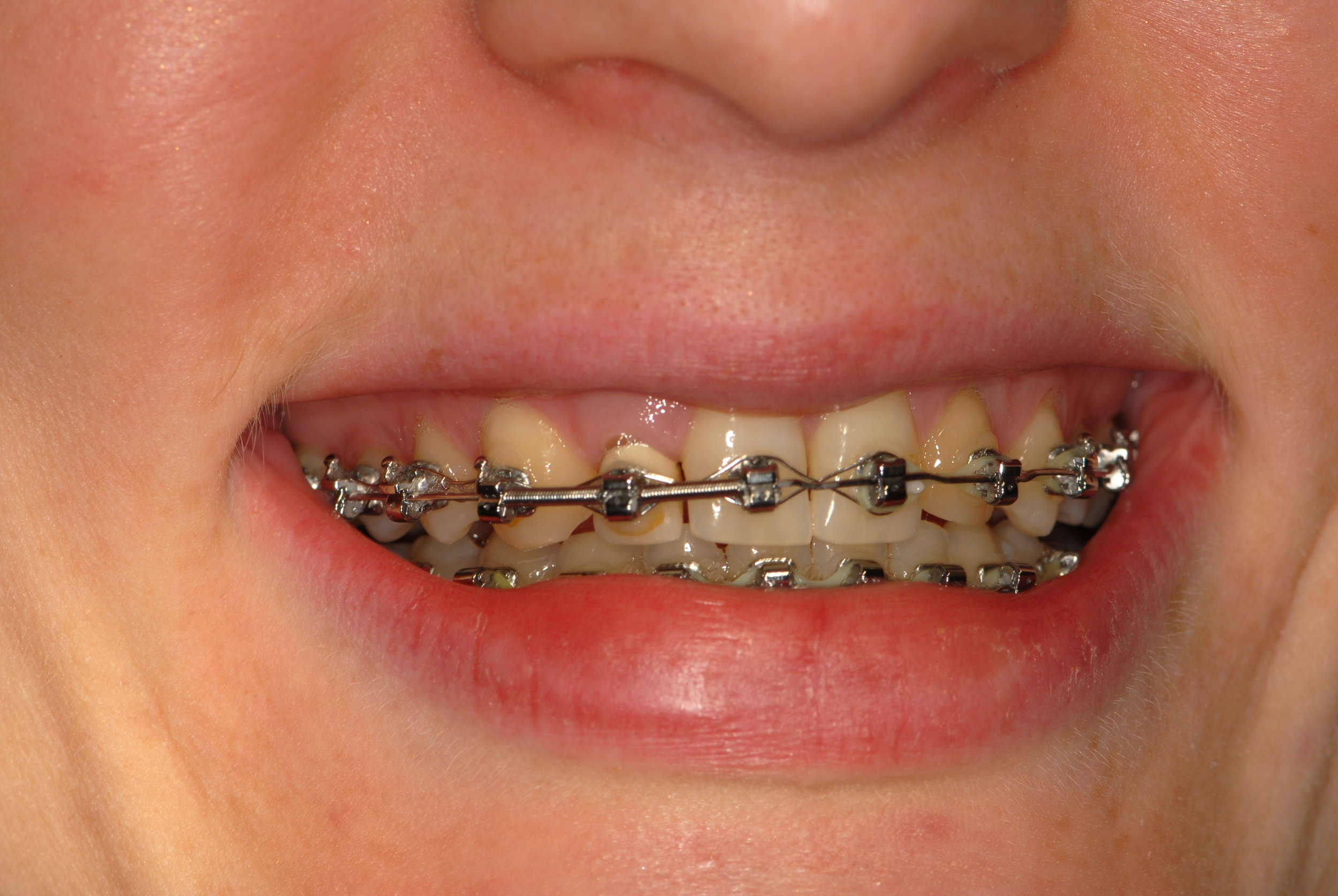 Orthodontics for implant positioning
