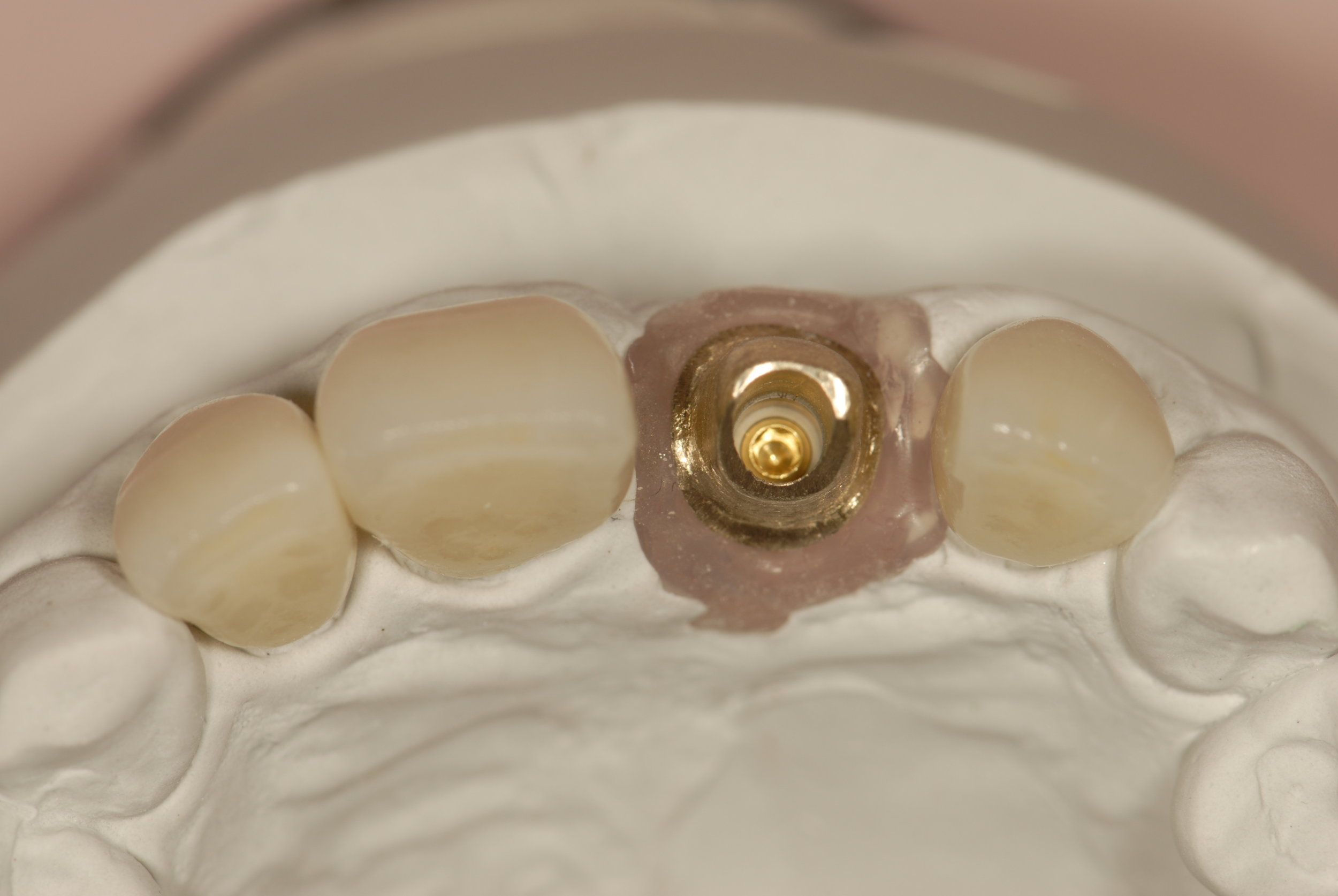 All ceramic crowns gold abutment