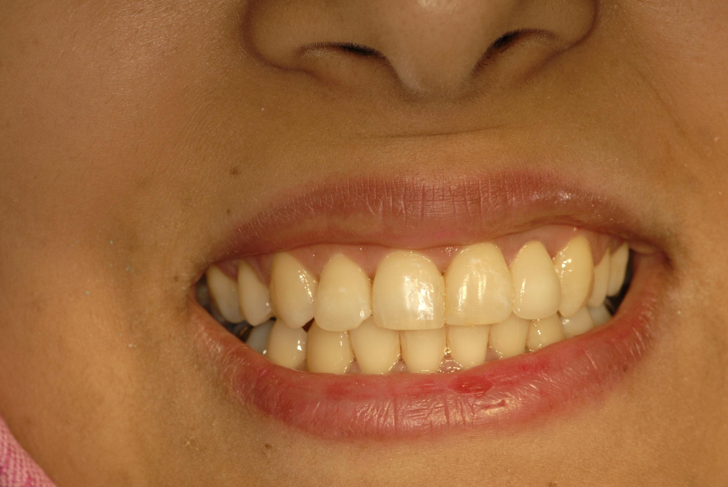 Nice smile high gummy smile