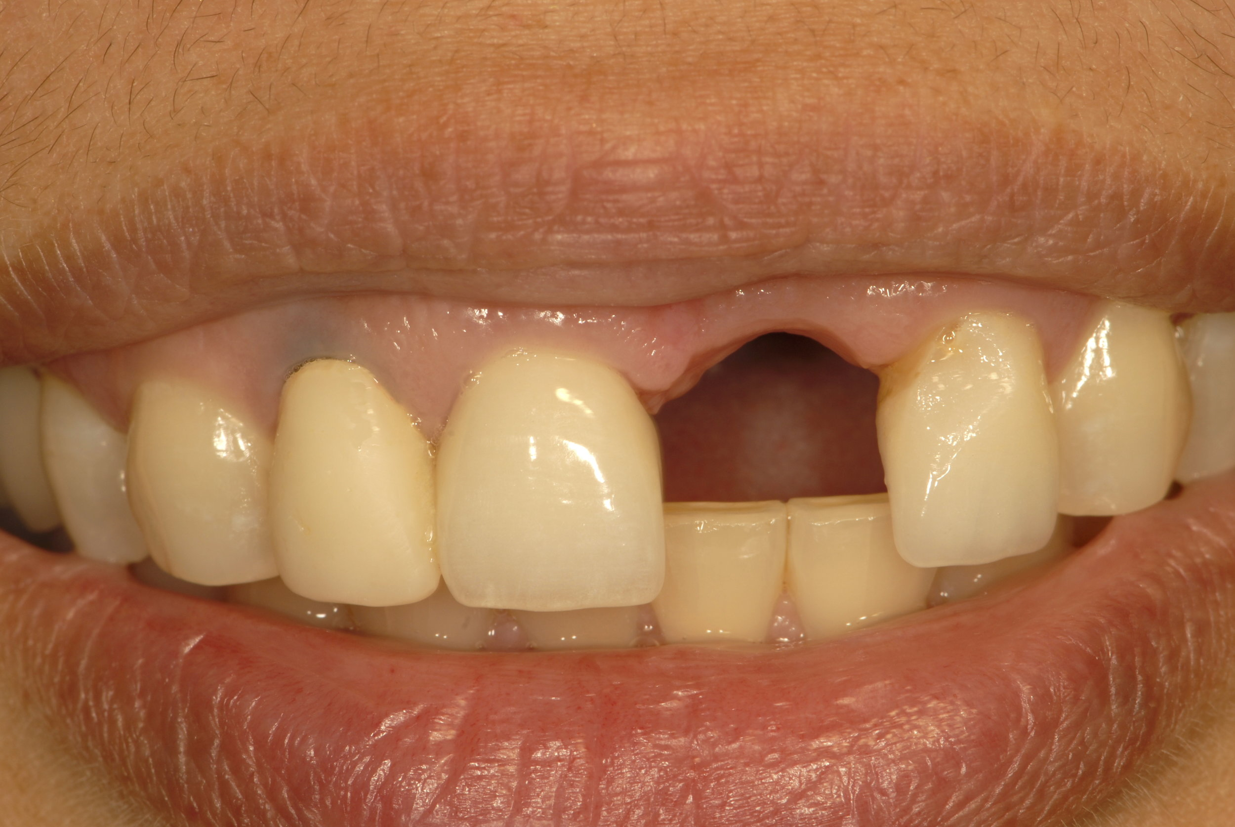 Missing tooth old crowns 1