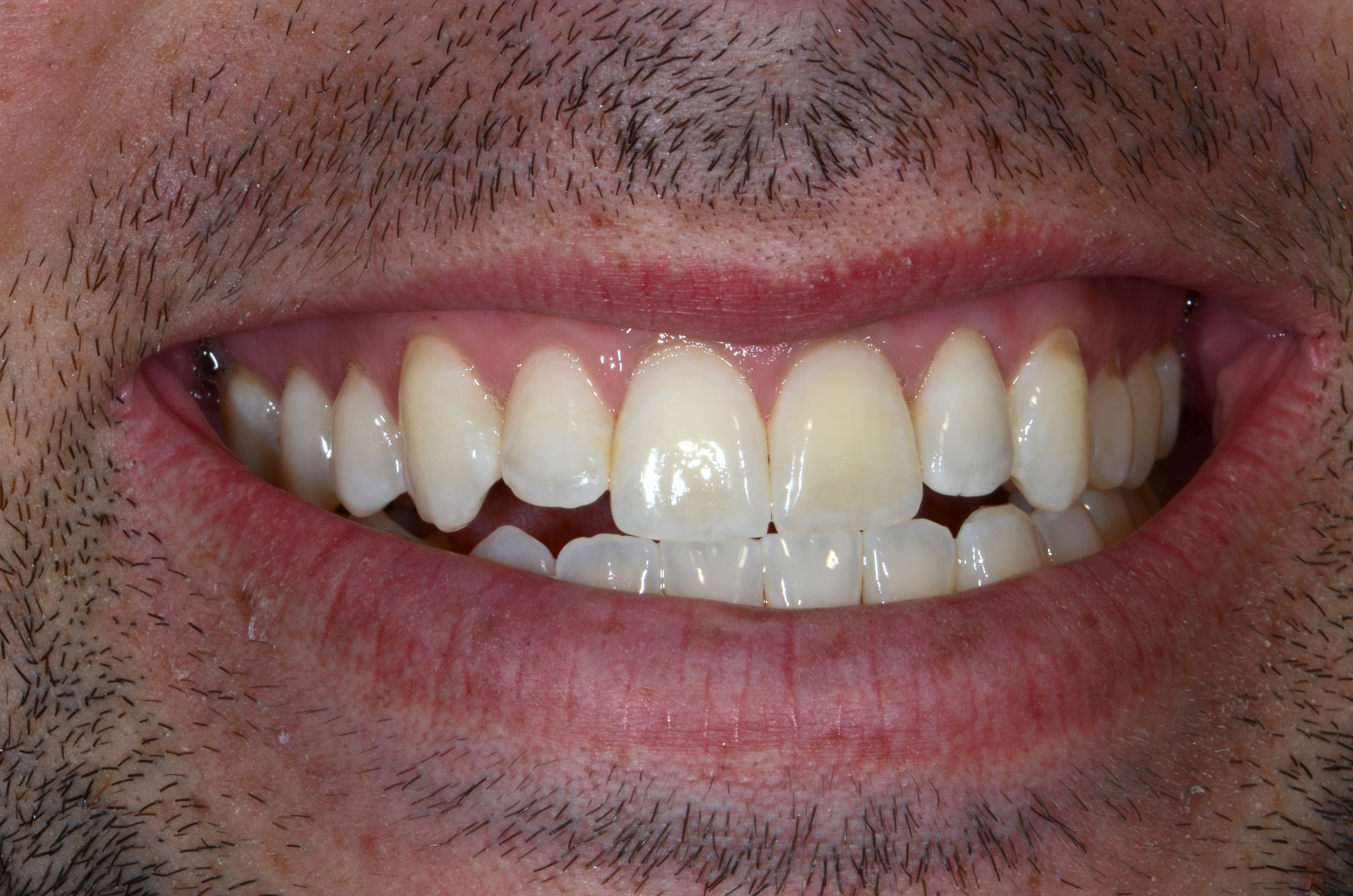 CROWNS -  We replace existing crowns and fillings with restorations that look and feel like your natural teeth.