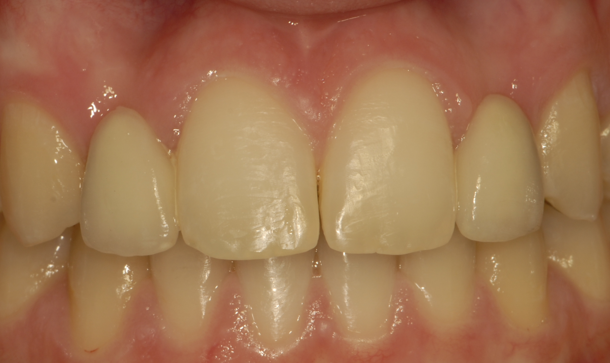Bridges - A bridge is a device used to replace missing teeth by attaching an artificial tooth (pontic) to an adjacent natural tooth, or to an implant.  A bridge can be either permanently attached (fixed), or removable. The doctor will discuss options with you and recommend the best treatment.