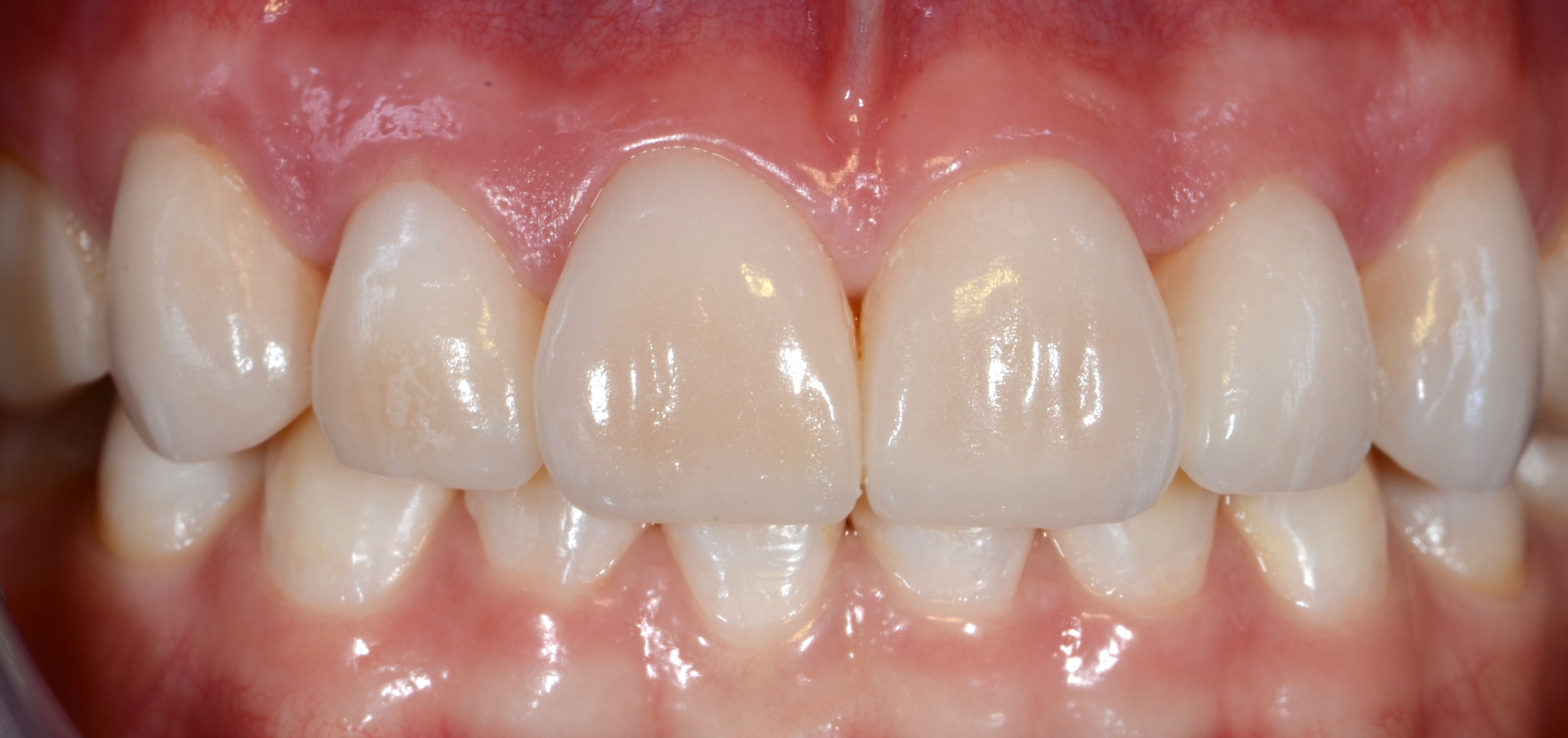 Porcelain Veneers - Porcelain veneers are thin shells of ceramic that bond directly to the front surfaces of the teeth. They have become increasingly popular due to their simplicity and versatility.