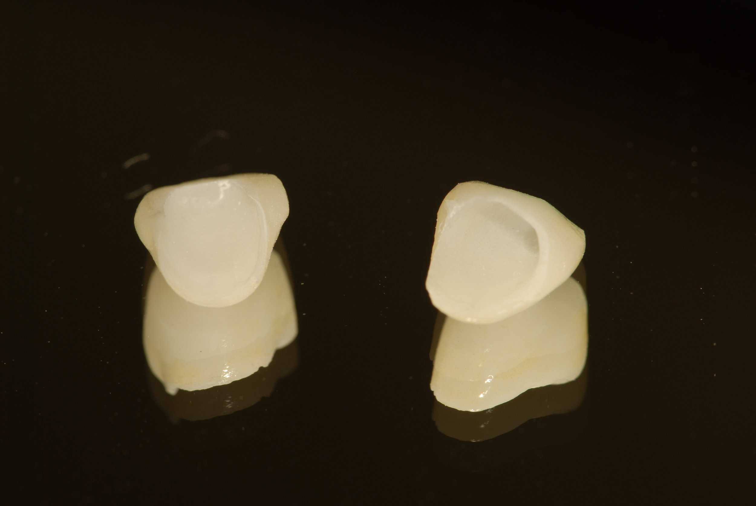 Porcelain back veneers