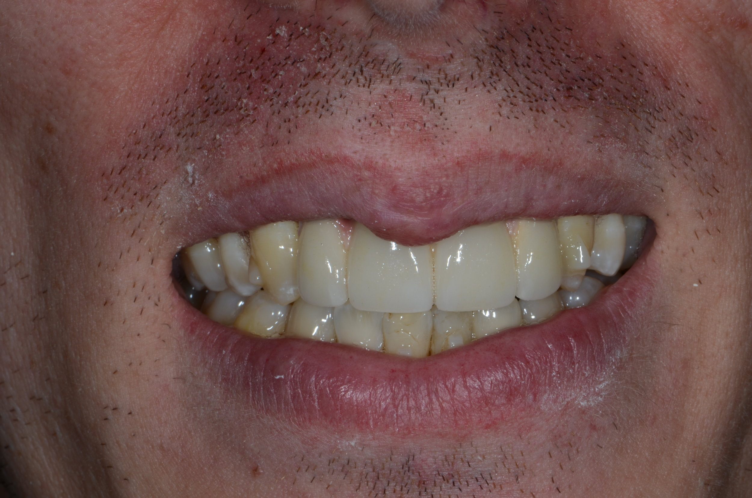 Restoring smiles final crownwork