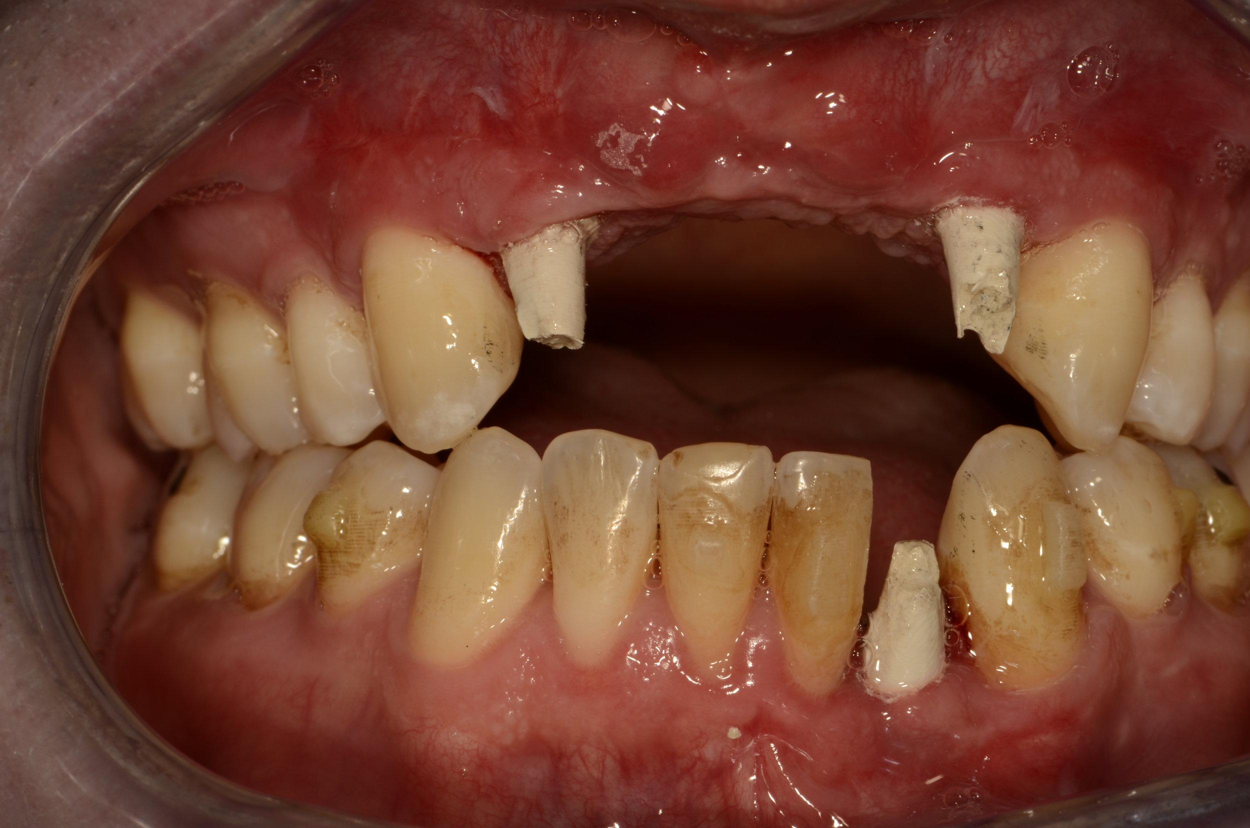 Temporary implant abutments