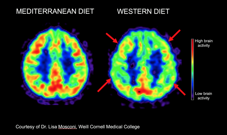 PET-scans_Mediterranean-vs-Western-diet-768x456.png