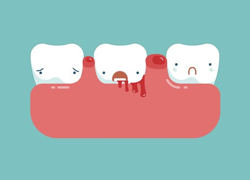 Advanced Periodontal Treatments - click to know more
