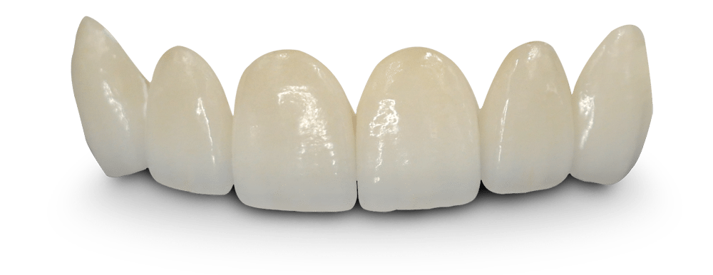 Veneers - click to know more