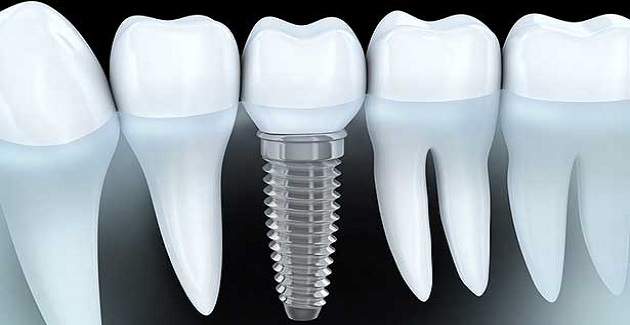 Dental Implants - click to know more