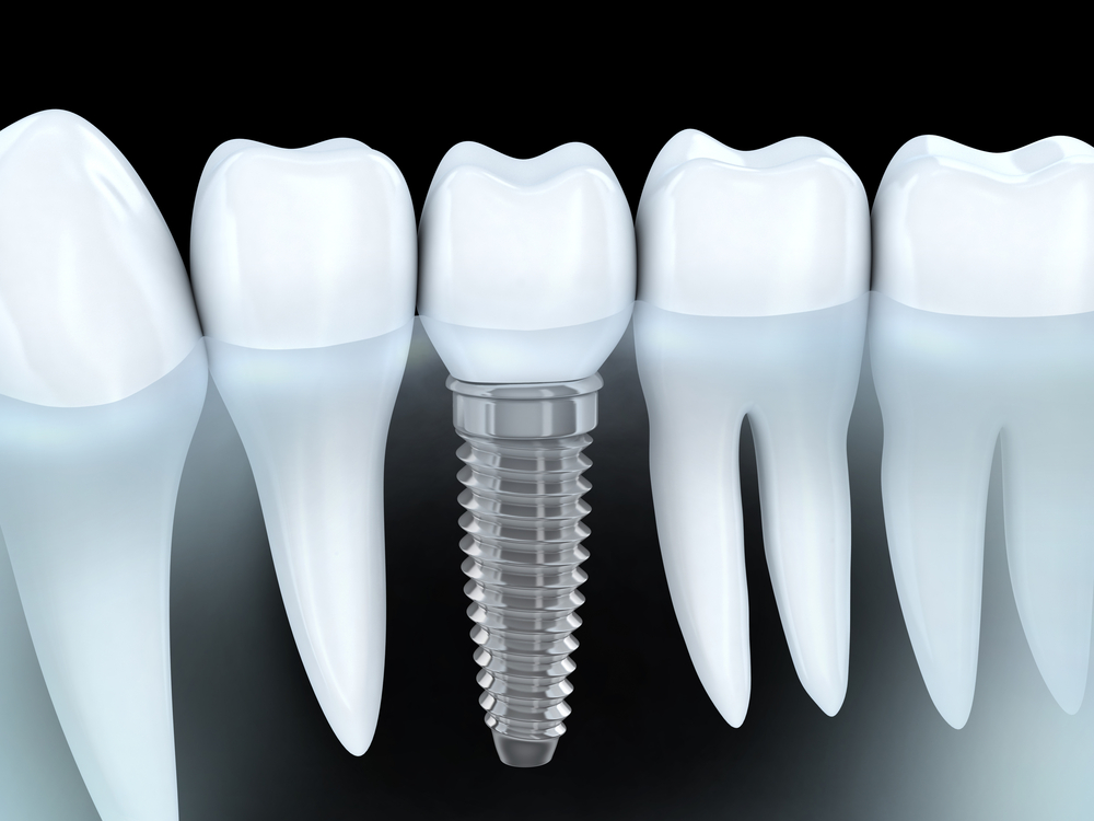 Dental-Implants.jpg