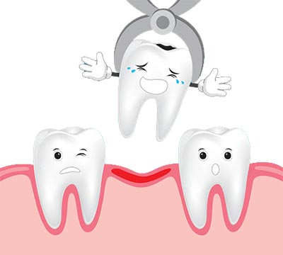 Tooth-Extraction-pediatric-dentist-jersey-city-NJ1.jpg