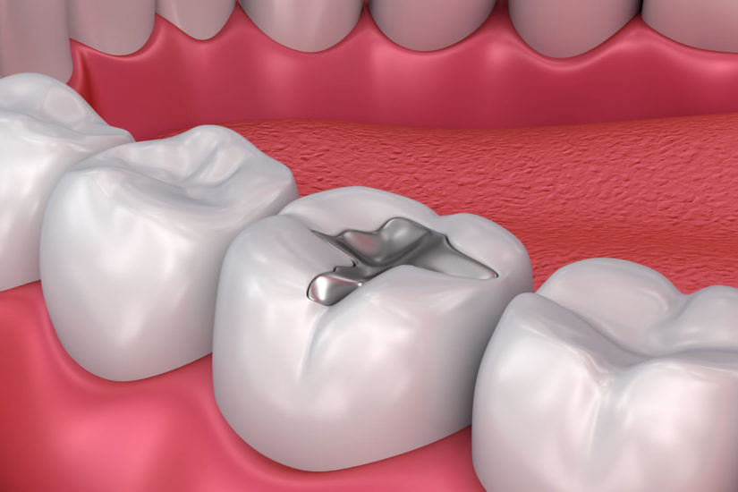 Dental Fillings - click to know more