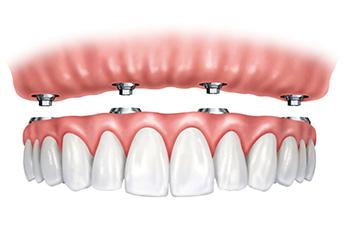 all-on-four-implants.jpg