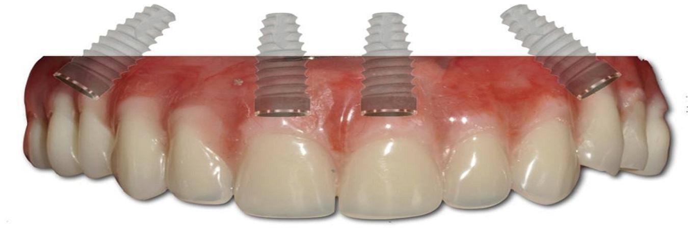 All-On-4-Dental-Implants-Dental-Clinic.jpg