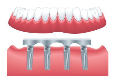 All on 4 Dental Implant Bridge - Fitted Same Day