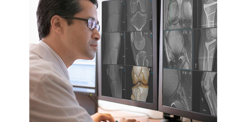 Medical Image Conversion System - Preoperative planning and enhancing informed consent.