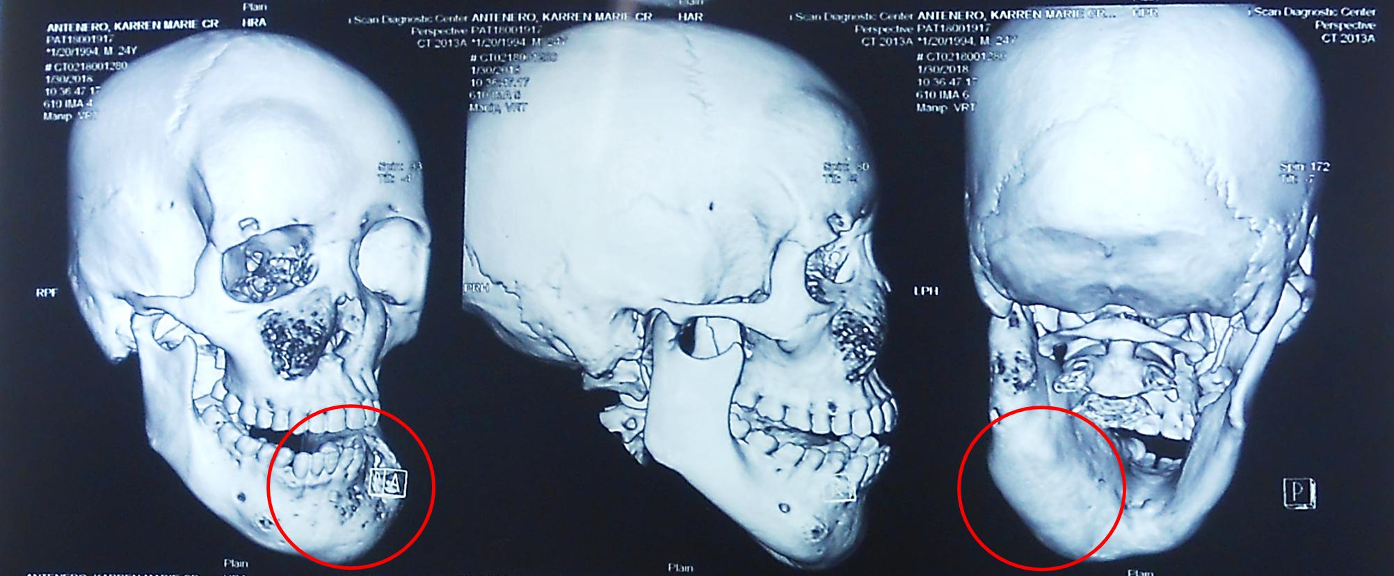 (術前電腦斷層掃描 明顯可看出病患左下顎骨腫瘤已腫脹變形)