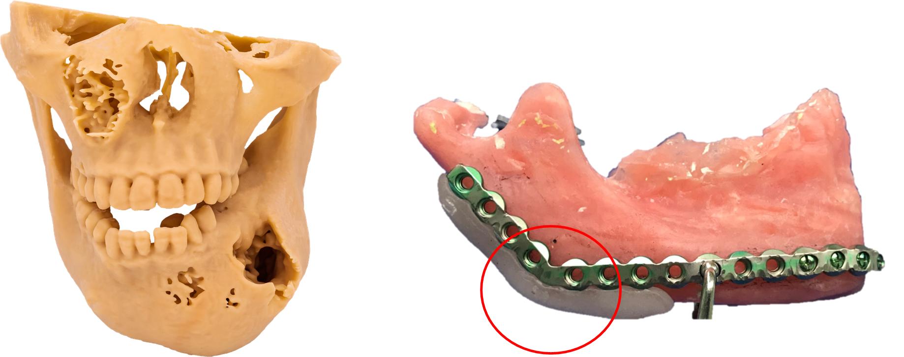 (左:3D列印重建病患下顎骨模型;右:於模型上預先客製化骨板及製作導引板)