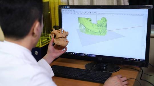 透過OMaker 3D列印,可預先模擬分析,使醫師在面對複雜的顎顏面重建手術上得到不少幫助