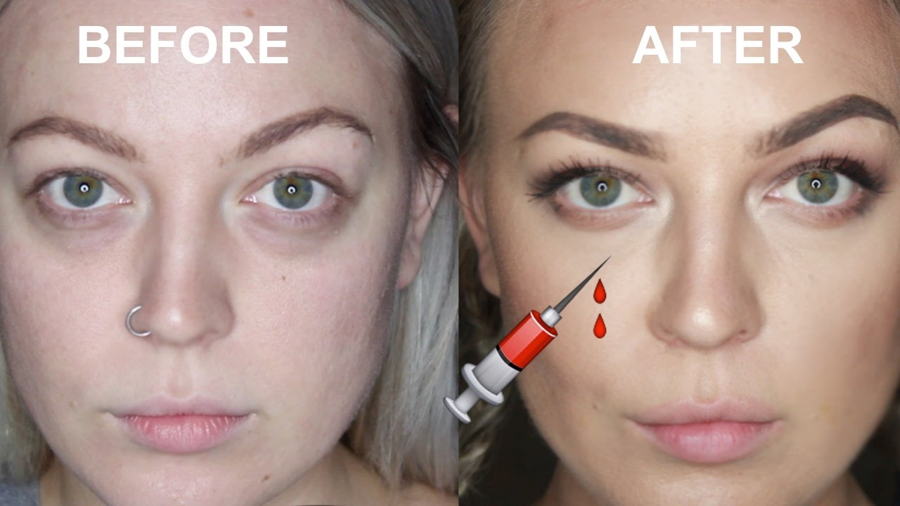 Check out this YouTuber's experience with tear trough fillers  here .