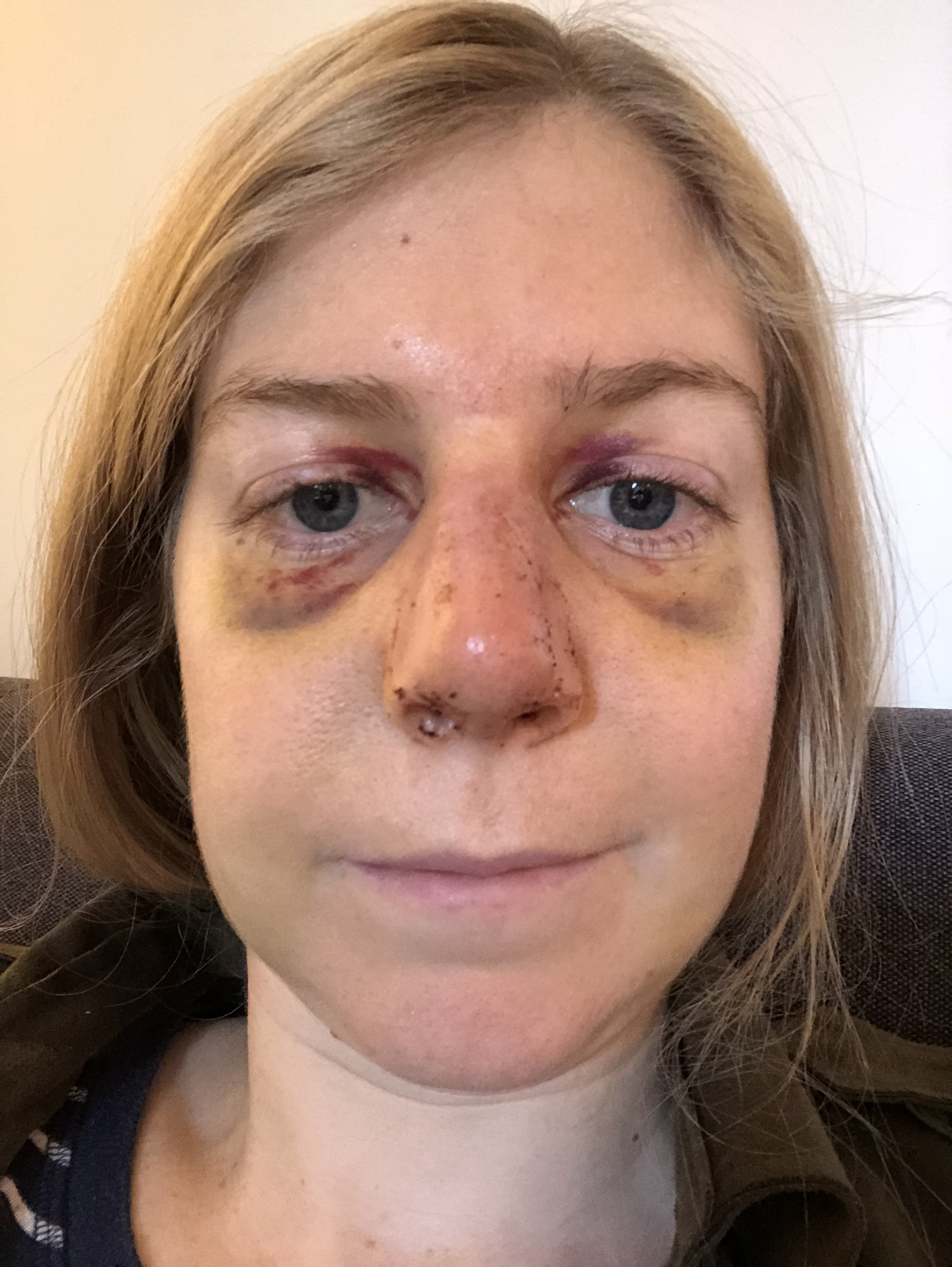 Nose Job Problems My Nose Is Swollen After My Cast Came Off Fluently Forward