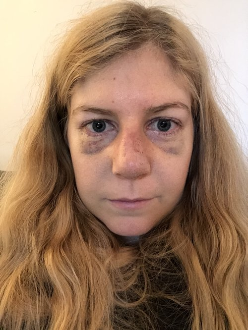 Nose Job Problems: My nose is swollen after my cast came off