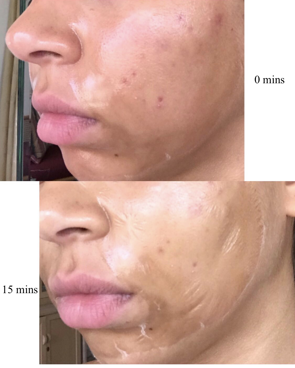 Some pictures online demonstrate a cracked skin appearance, but if you don't move your face at all, the cracks will barely appear